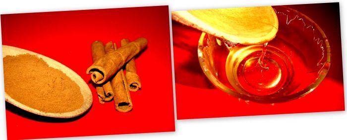 remedii naturiste pentru acnee - scortisoara si miere