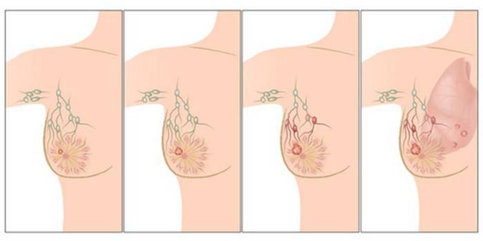 cauze ale cancerului de san_compressed