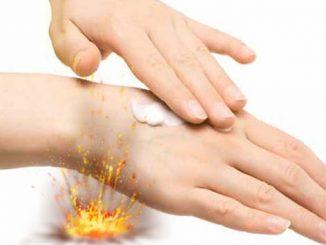 Câteva excelente remedii pentru arsuri, pe care le poți aplica acasă featured_compressed