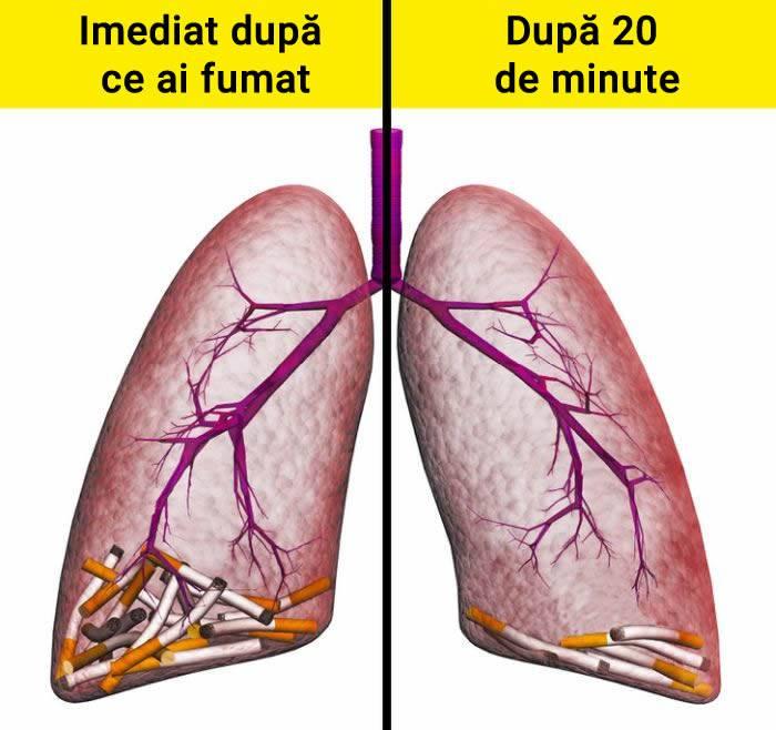 Efectele nocive ale fumatului 01